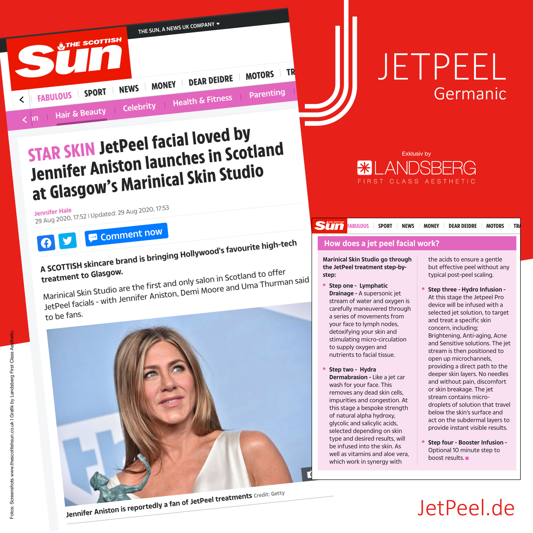 "JetPeel™ in ""The Scottish Sun"" – Erstes Institut in Schottland & Jennifer Aniston"